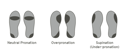 Your-Running-Style-The-Way-You-Run-Is-Interesting-Pronation